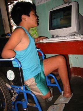 a cambodian boy victim of a land mine